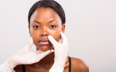 Treating dark skin tones which are prone to hyperpigmentation and acne scarring